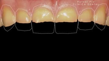 Caso 4 - Estética Dental - 1