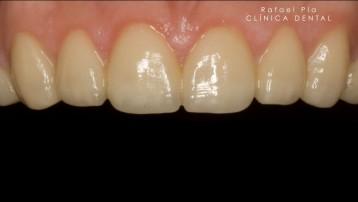 Caso 4 - Estética Dental - 2