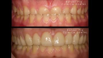 Caso 4 - Estética Dental - 3