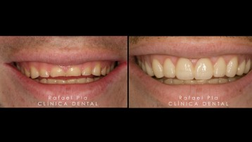 Caso 4 - Estética Dental - 4
