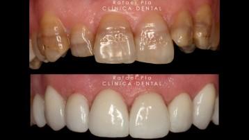 Caso 8 - Estética Dental - 1