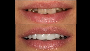 Caso 8 - Estética Dental - 2