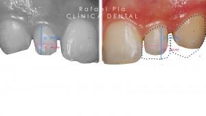 estetica dental 9