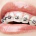 ortodoncia-servicios-inicio