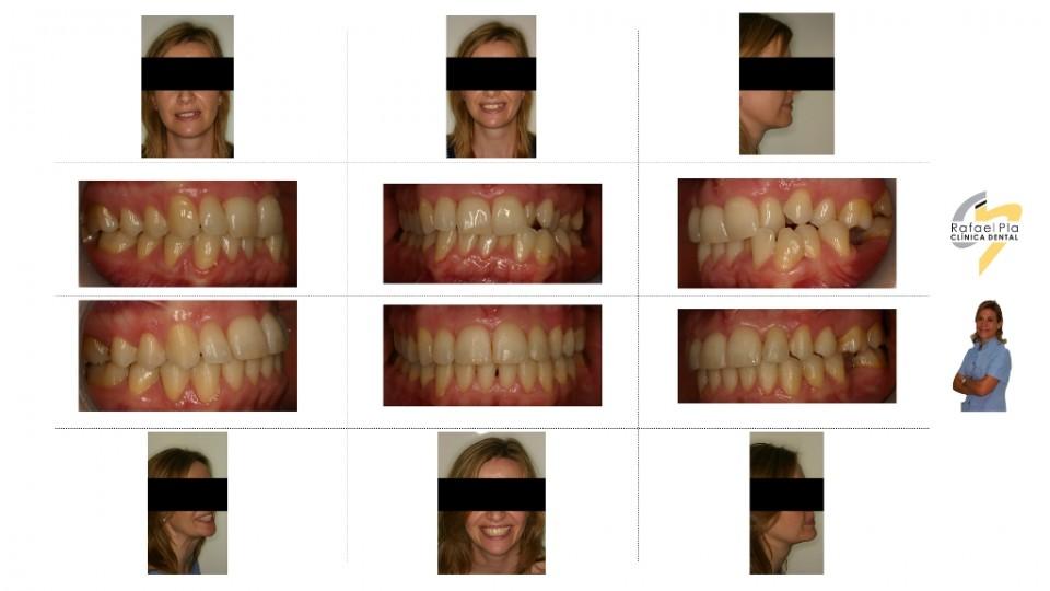 Caso 2 - Ortodoncia