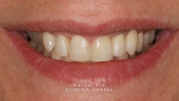 Caso 4- Estética Dental