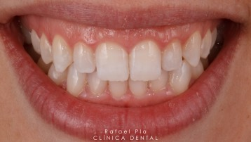 Blanqueamiento Dental Despues