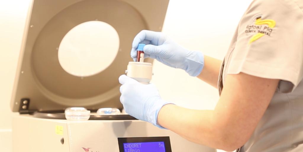 Proceso de centrifugado de sangre.