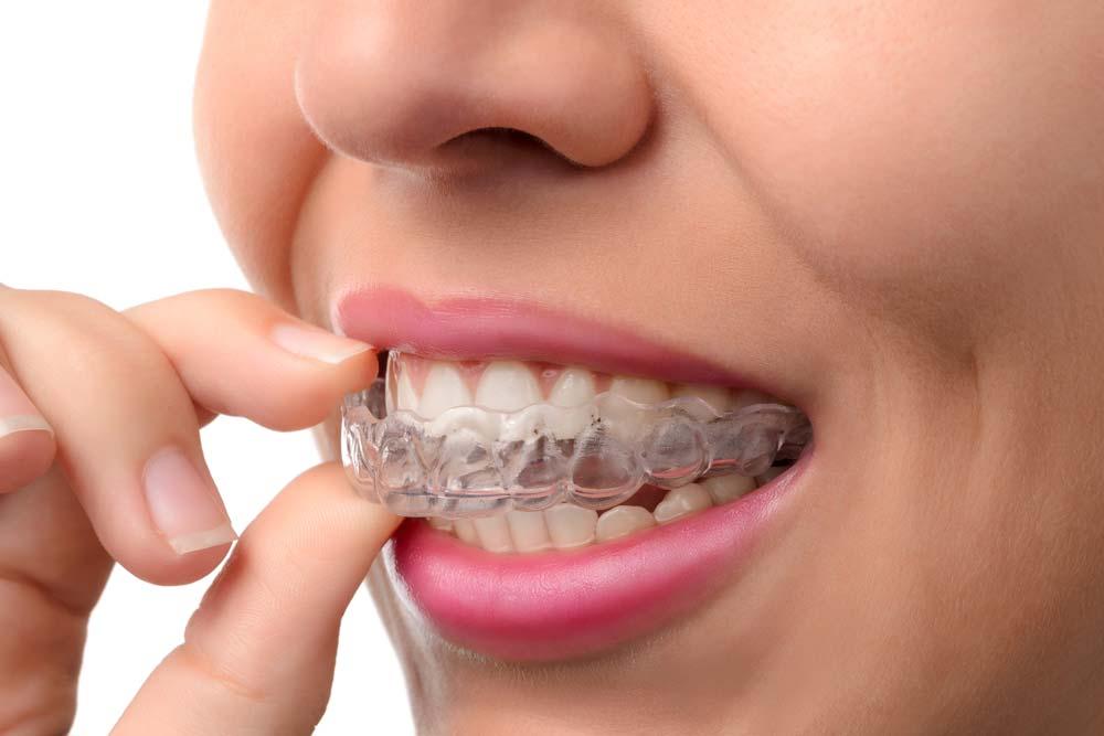 Alineadores removibles Invisalign en Clínica dental Rafael Pla