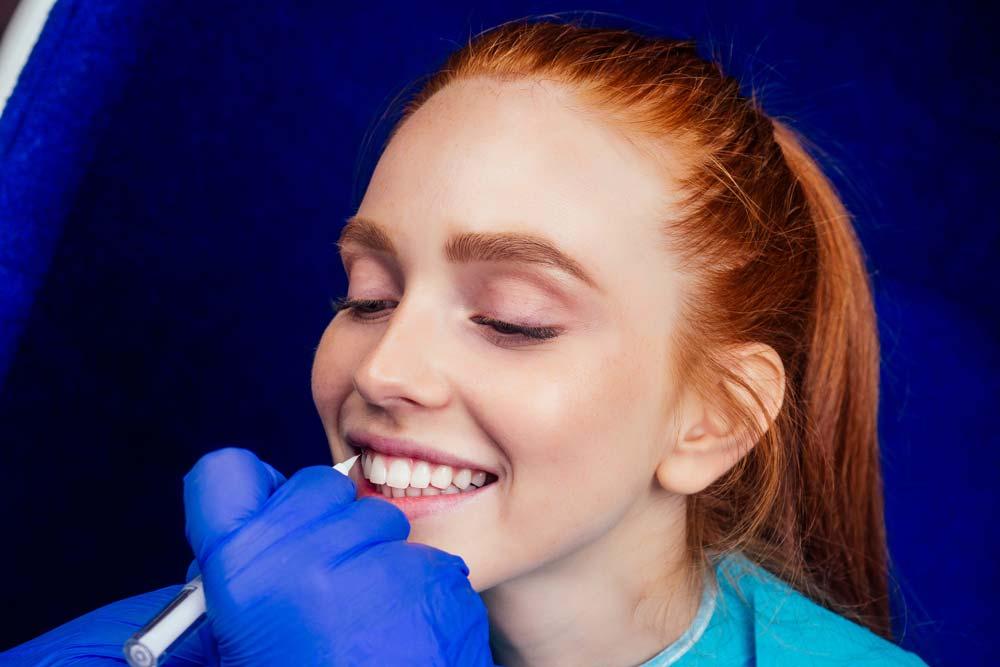Carilla dental de composite en Albacete