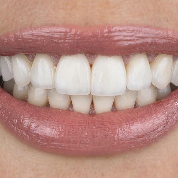 Carillas Dentales en Albacete