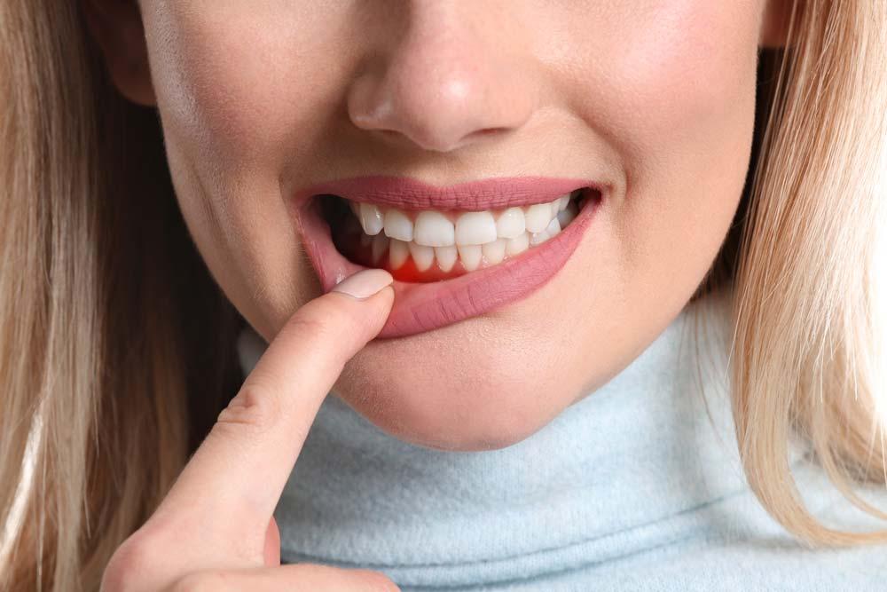 Gingivitis, enfermedad periodontal, Clínica Rafael Pla