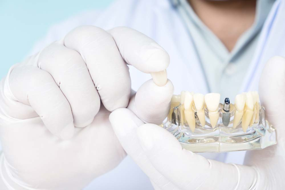 Implante dental en Clínica Albacete