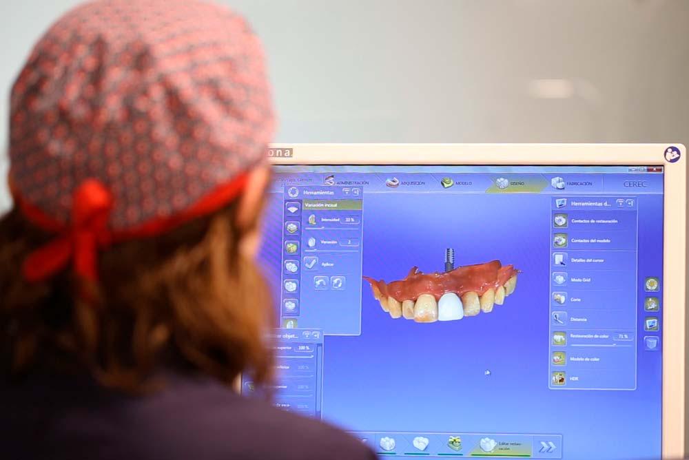 Preparación para Implante dental en Clínica Rafael Pla