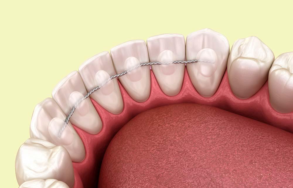 Retenedor post ortodoncia en Clínica dental Pla