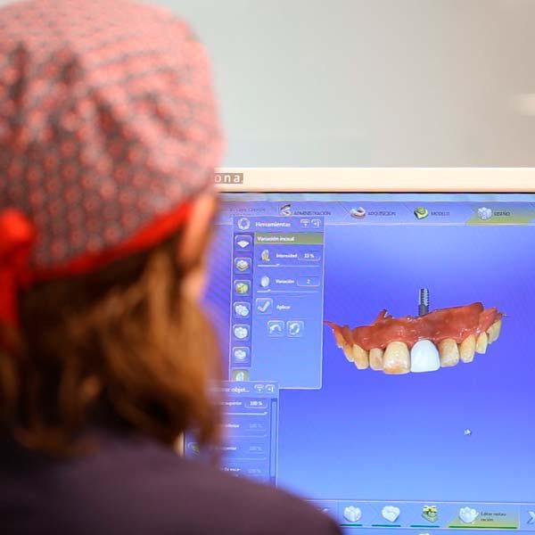 Tecnología Cerec para implantes dentales en Clínica dental Rafael Pla