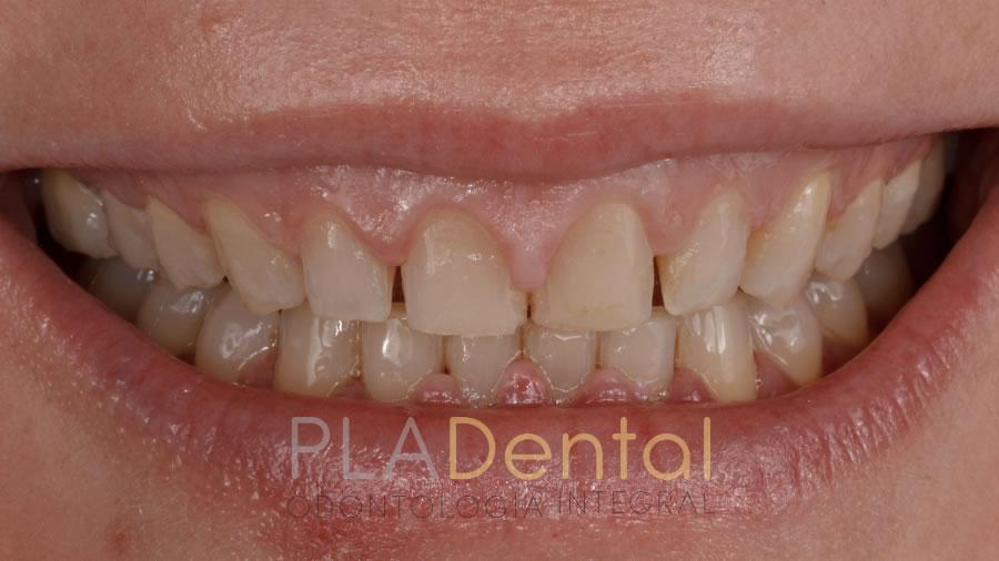 Carillas dentales, antes