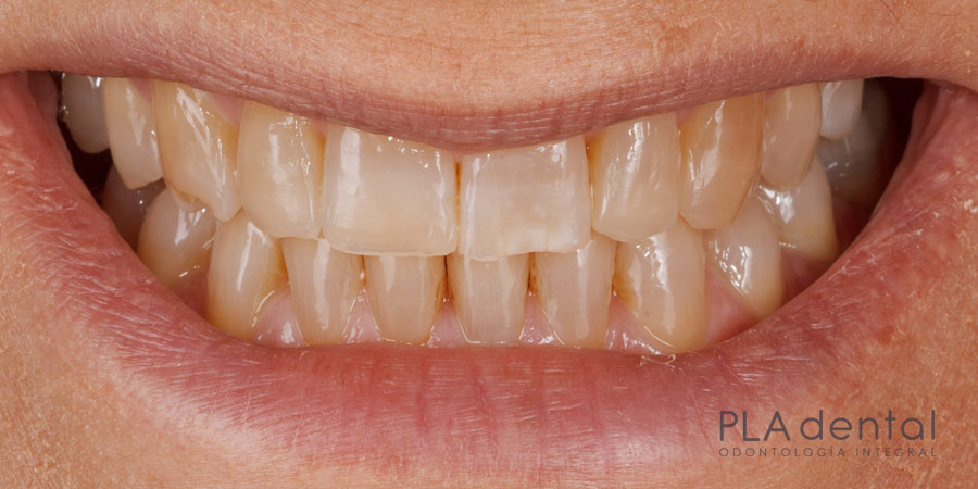 Blanqueamiento dental, antes