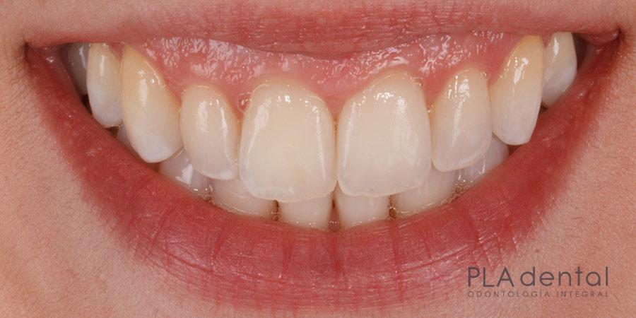 Blanqueamiento dental, después