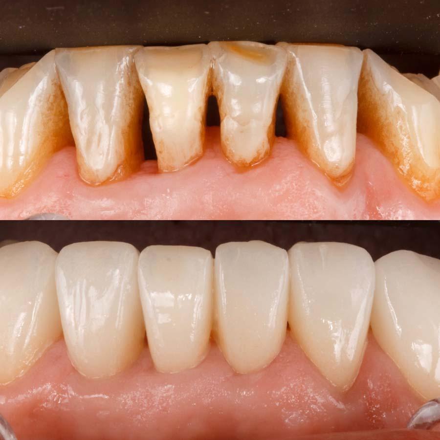 Carillas dentales, antes y después en Clínica Rafael Pla