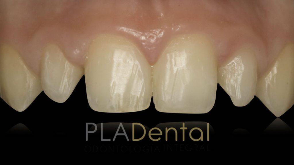 Carillas Dentales en Clínica Pla