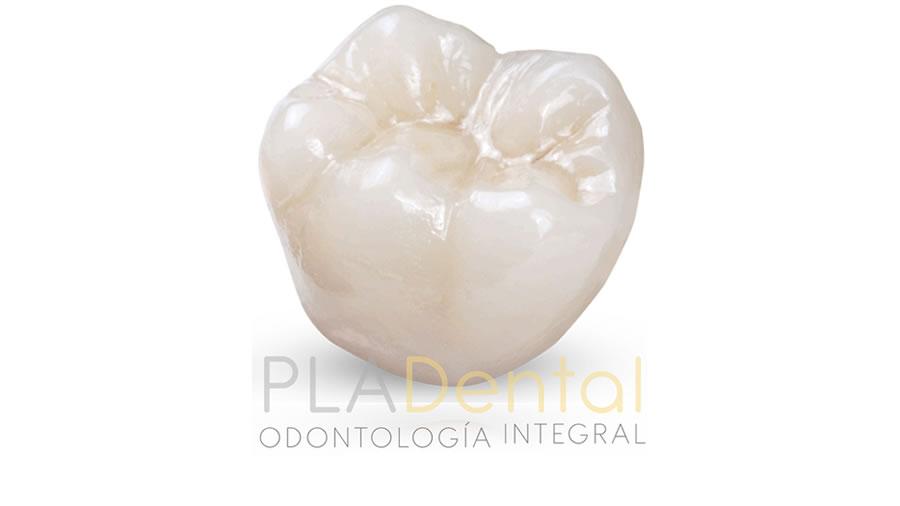 Corona dental clínica Pla