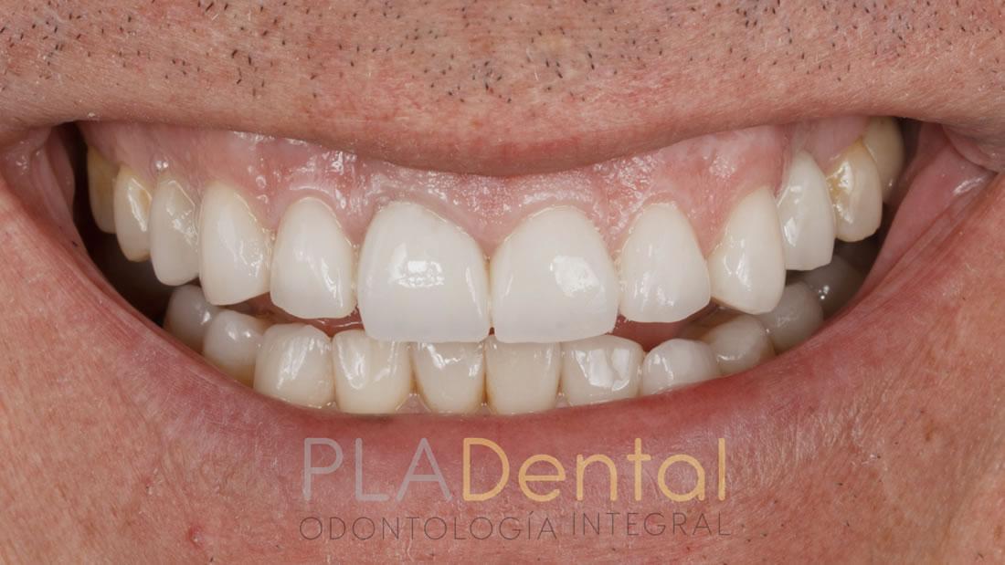 Diseño de la sonrisa, Clínica Pla