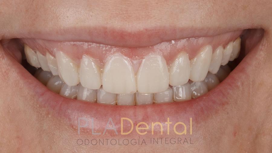 Carillas dentales, prueba estética