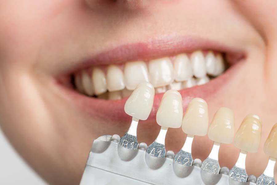 Que es una carilla dental, Clínica Rafael Pla