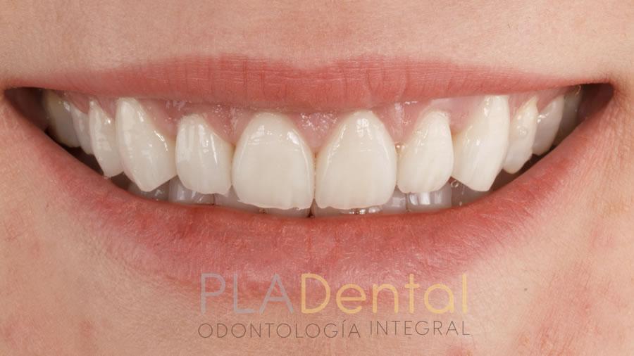 Carillas dentales, resultado final