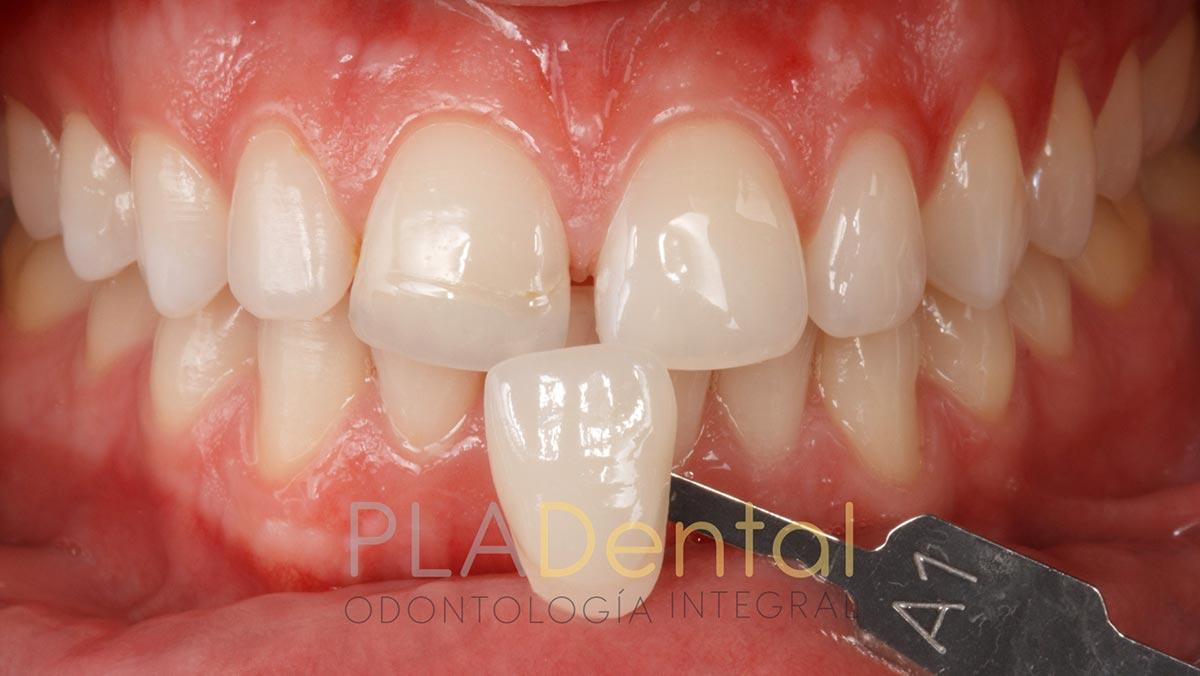 Blanqueamiento dental, tono conseguido