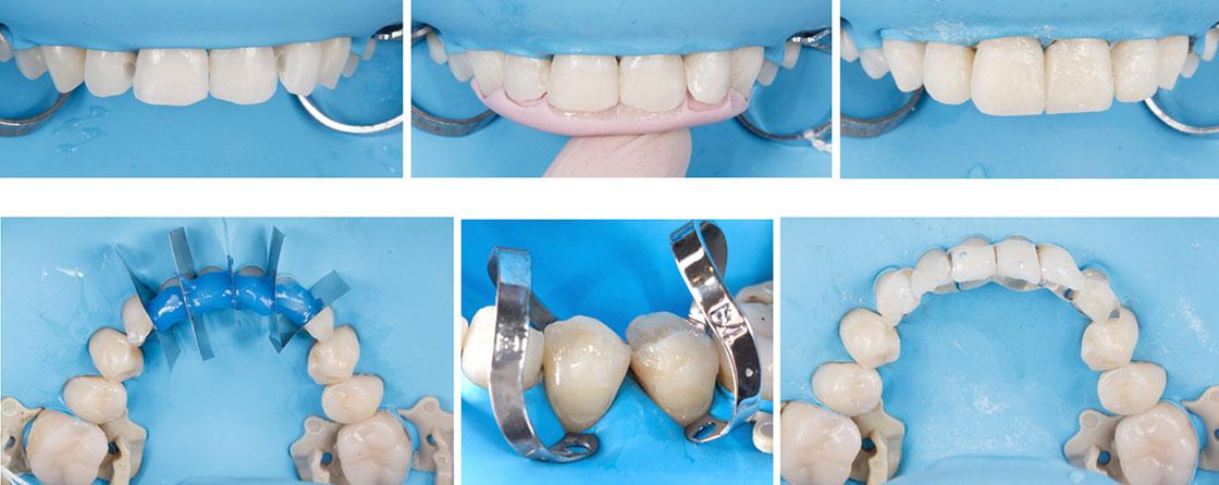 Restauración de composite para casos de desgaste dental