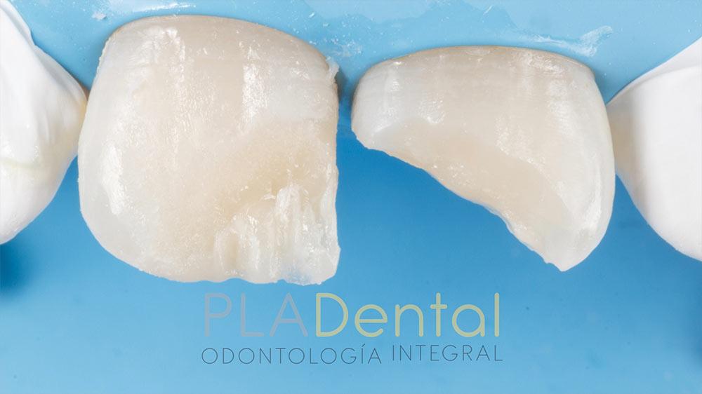 Restauración dental tras traumatismo