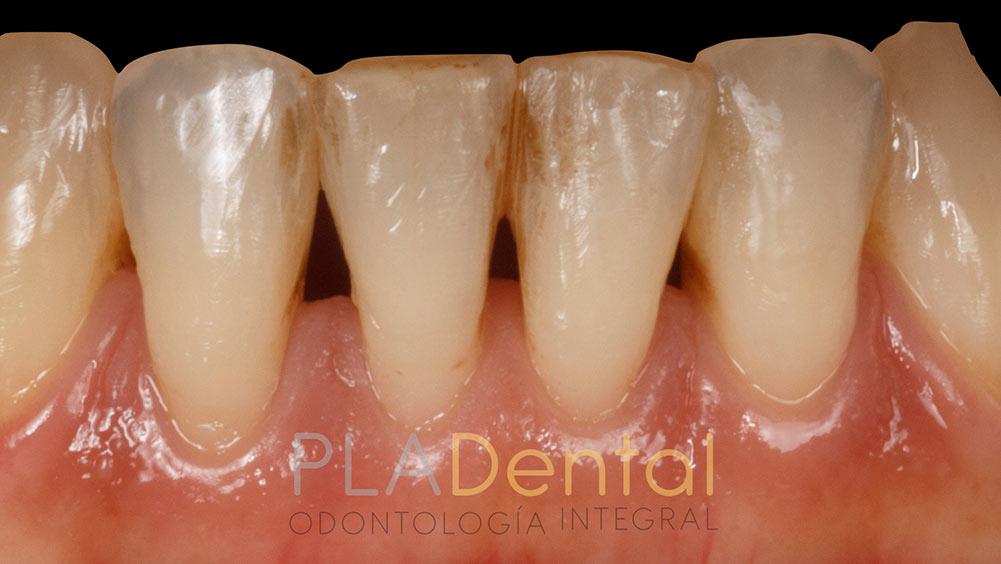 Caso clínico de restauración dental