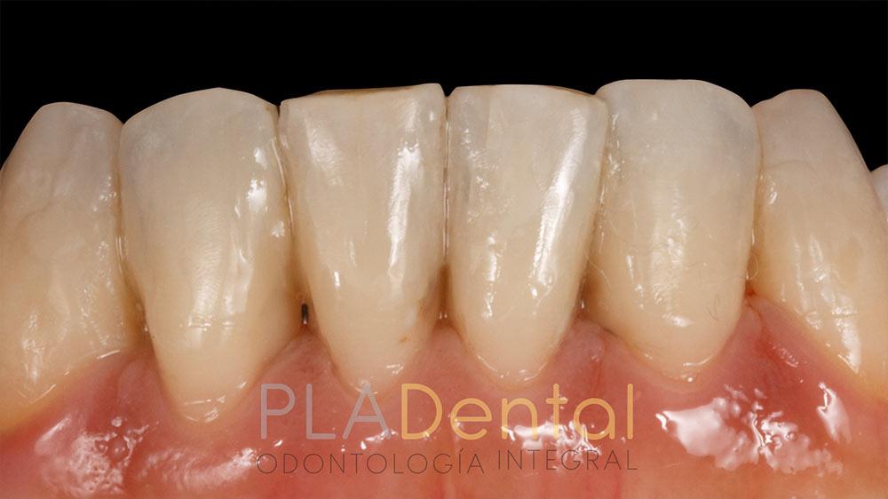 Restauración con composite, caso clínico: antes, clínica dental en Albacete