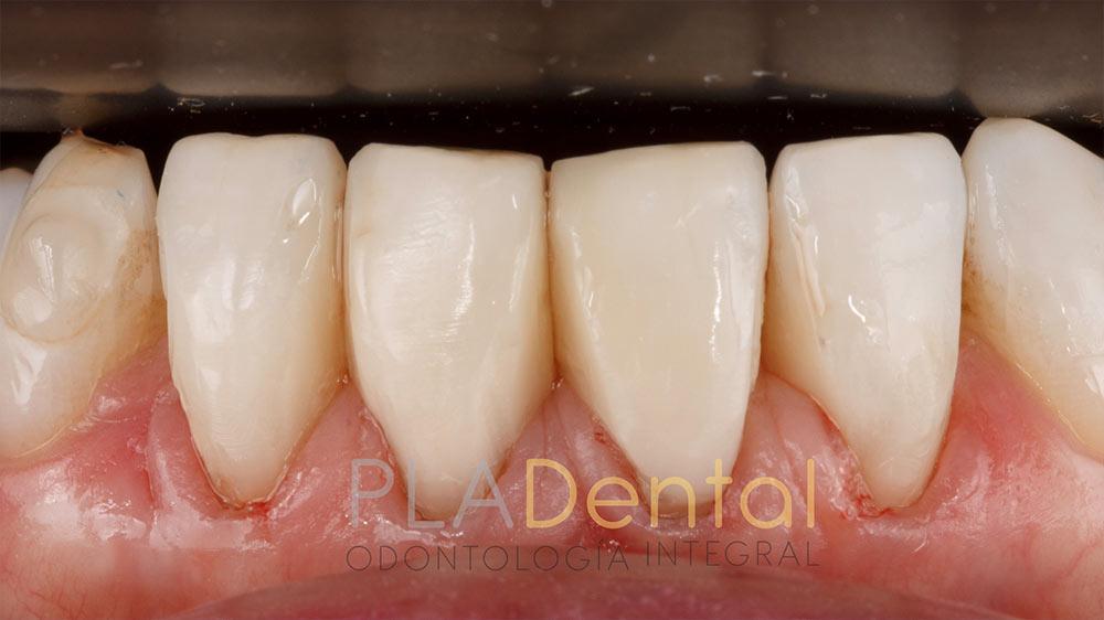 Restauración con composite, clínica dental en Albacete