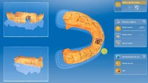 Implantes dentales. Carga inmediata