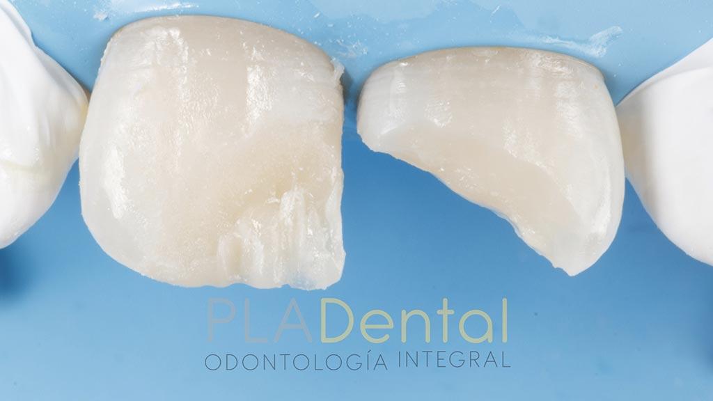 Caso clínico traumatismo dental: solución con composite