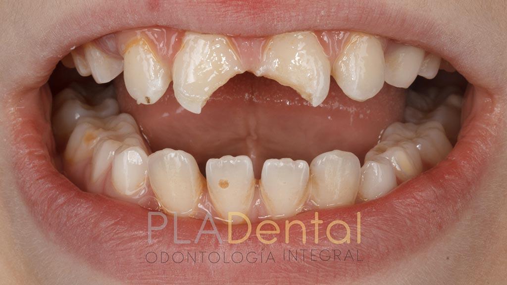 Caso clínico traumatismo dental