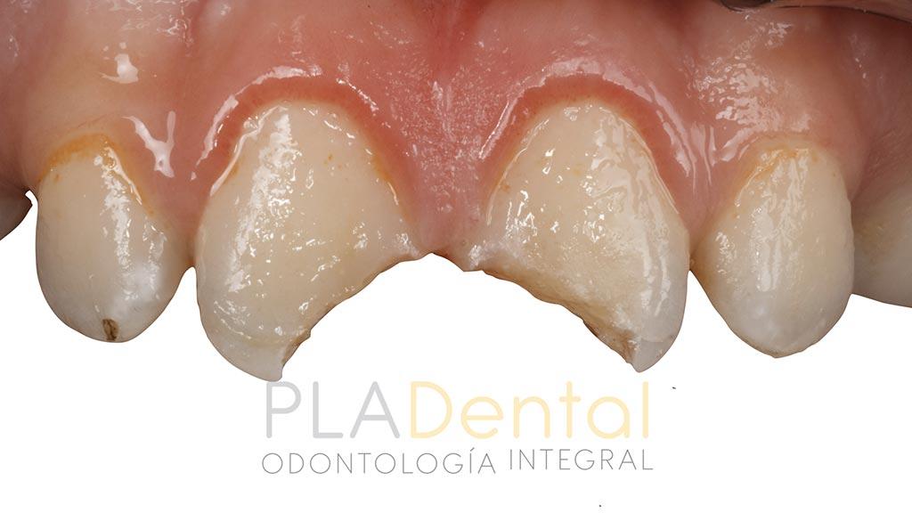 Caso clínico traumatismo dental en Albacete