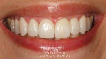 Caso 3 de estética dental en Albacete