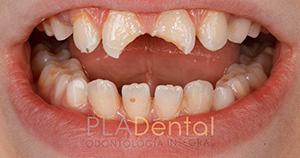 Caso clínico: traumatismo dental en Albacete