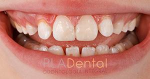 Caso de traumatismo dental