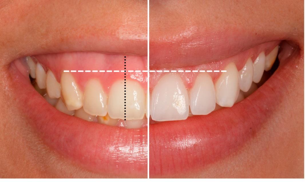 Antes y después. Sonrisa Gingival
