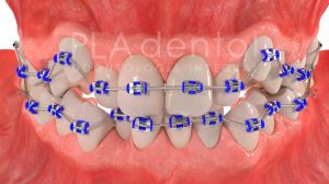 Ortodoncia. Falta de espacio.